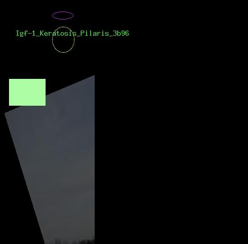 Igf-1 Keratosis Pilaris